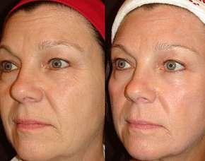 Sleva 87% - 3D HIFU Ultherapy lifting vybrané partie či celého obličeje a krku - omlazení…