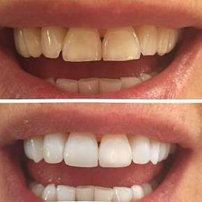 Sleva 83% - Neperoxidové bělení zubů přístrojem WHITEN LED za použití šetrného gelu pro…