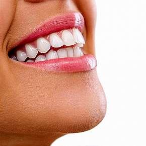 Sleva 80% - Neperoxidové bělení zubů přístrojem Whiten led v prestižním studiu v Plzni.
