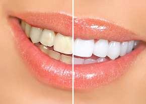 Sleva 86% - Bezperoxidové bělení zubů v Plzni pro krásný bílý chrup
