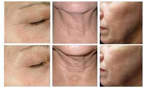 Sleva 87% - Ošetření obličeje a vrchní části krku pomocí procedury Hifu Ultheralift