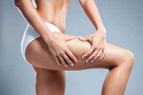 Sleva 24% - Anticelulitidová masáž se zábalem a lymfodrenáží pro hladkou a pevnou pokožku