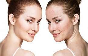 Sleva 42% - Kosmetické ošetření laserem proti vráskám, akné i pigmentovým skvrnám ve Studiu…
