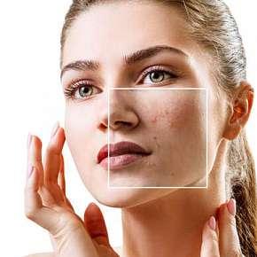 Sleva 53% - Odstranění žilek, pigmentace nebo akné intenzivním pulsním světlem v plzeňském…